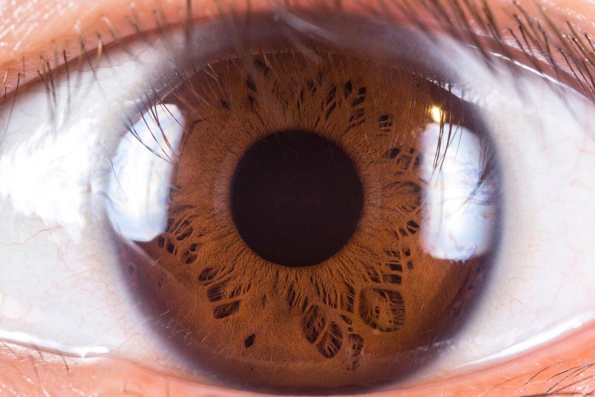 Очки или линзы? Плюсы и минусы